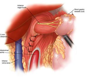 Iatoplastica posteriore con o senza protesi