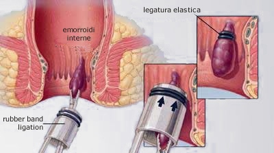Legature elastiche Emorroidi interne