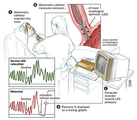 Manometria esofagea