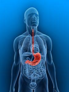 Il Dr. Quartararo effettua Trattamento chirurgico Reflusso Gastroesofageo (MRGE)