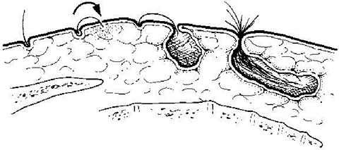 Cisti pilonidale (o sacro-coccigea) Fig.1