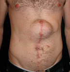 Prima intervento - ernia addominale e laparocele