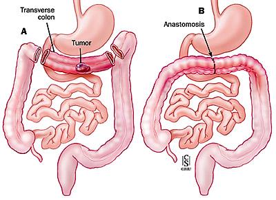 Resezione segmentaria del colon trasverso