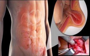 Trattamento chirurgico dell'ernia inguinale