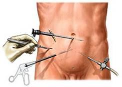 Gastrectomia totale o parziale laparoscopica mini-invasiva