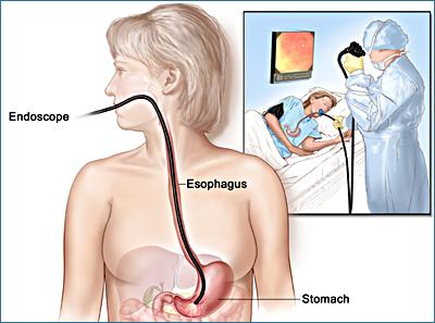 Esofago–gastro–duodenoscopia (EGDS) - Acalasia esofagea