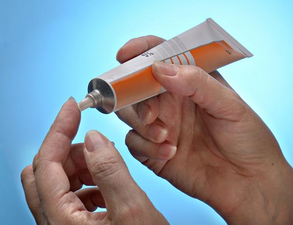 Condilomi anali - applicazione locale di creme immunostimolanti e/o antimitotiche