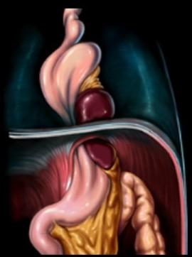 Ernia Tipo IV (migrazione dello stomaco e altri organi addominali)