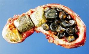 Calcoli biliari puri costituiti da colesterolo, calcoli biliari pigmentati costituiti da bilirubina e calcoli biliari misti