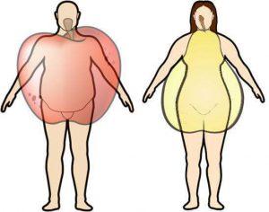 La chirurgia bariatrica è l'unica soluzione a grave obesità