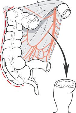 Resezione anteriore del retto
