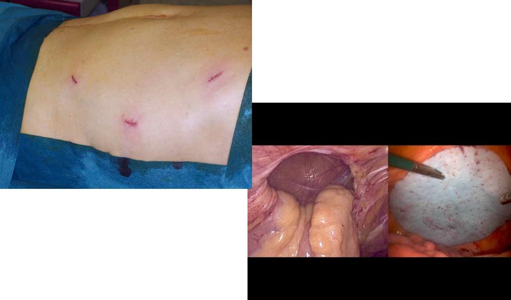 Plastica con protesi per via laparoscopica
