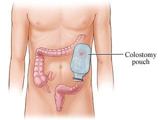 Stomia o colostomia