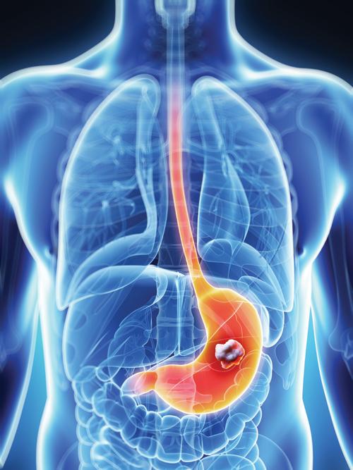 Tumore dello stomaco - Adenocarcinoma gastrico