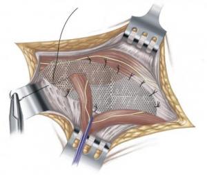 ernia inguinale, riparazione mediante posizionamento protesi in polipropilene