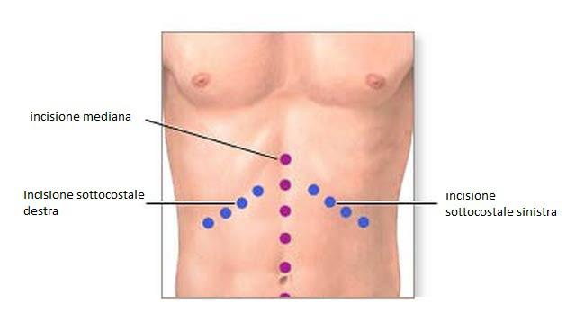 Gastrectomia totale o parziale intervento tradizionale OPEN