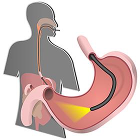 Gastroscopia - diagnosi di adenocarcinoma gastrico