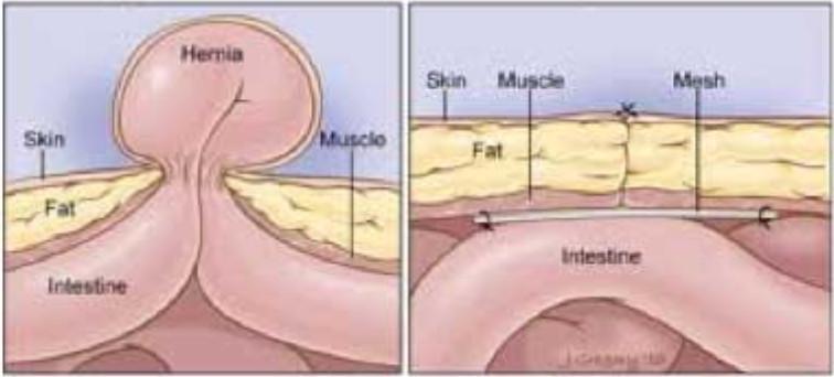 intervento chirurgico ernia o laparocele unica terapia