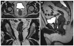 iter diagnostico - tumore colo-rettale