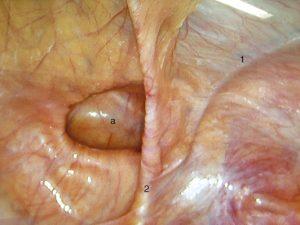 riparazione laparoscopica è preferibile per ernie bilaterali e nei pazienti sportitvi